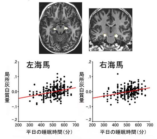 記憶にかかわる脳の海馬は、睡眠時間が長い子供のほうが、より大きい