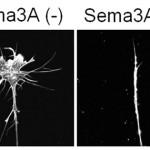 Semaphorin3Aによるエンドサイトーシスを制御する新たなシグナル伝達経路の解明