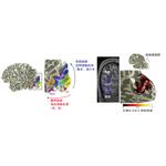 【神経科学トピックス】ヒト脳において空間情報と形態情報の統合に関わる情報伝達経路を同定