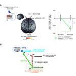 【神経科学トピックス】「無知の知」を生みだす脳のはたらきを解明