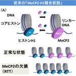 【神経科学トピックス】レット症候群の病態理解に向けて‐MeCP2とリンカーヒストンH1の関係を解明‐